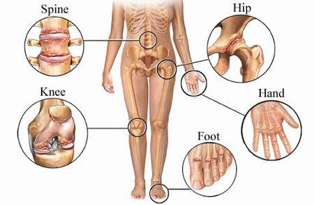 إلتهاب المفاصل ( Arthritis_osteoarthritis